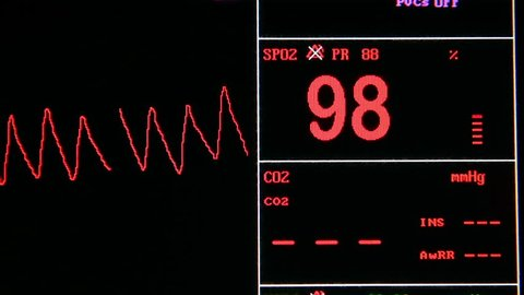 close up shot of vital signs monitor