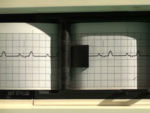 EKG printer close-up flat line - NTSC