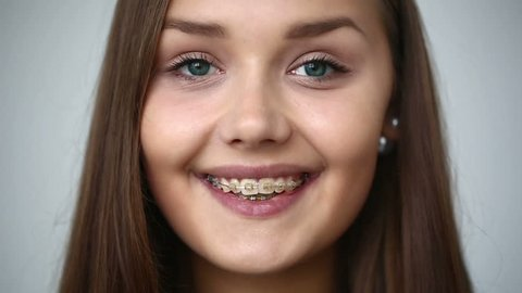 SLOW MOTION: Young girl with braces on teeth looking at camera and smiling.