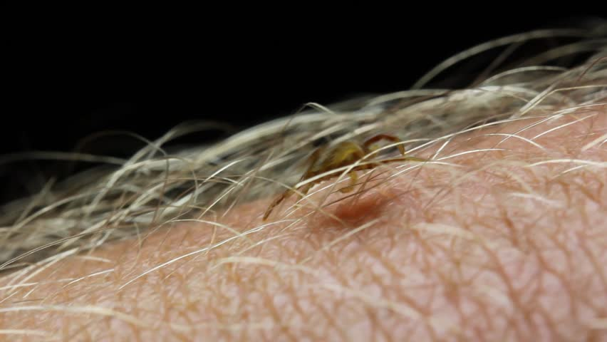 Paralysis ticks, also called dog ticks, shell-back ticks or scrub ticks are a small insect parasite. Ticks are small arachnids in the order Parasitiformes also know as Ectoparasites.