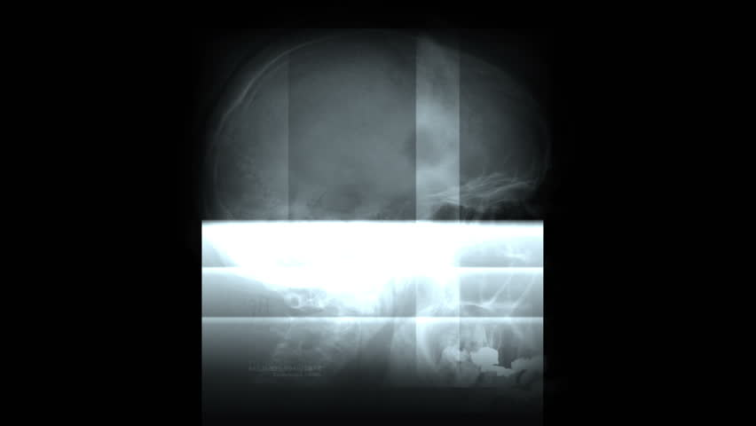 4k Human bones scan,tech medical scanning Background,abstract X-ray scientific research technology film,body health bones Pet-CT big-data backdrop,genes explore,database coding,horror murder. 0554_4k