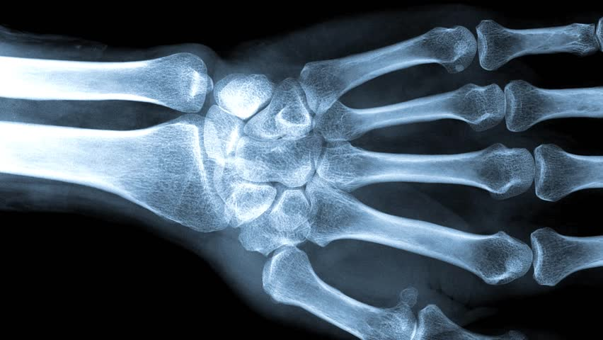 X-rays are a type of electromagnetic radiation, just like visible light. An x-ray machine sends individual x-ray particles through the body.